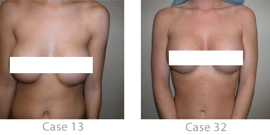 Before-and-after images from 2 breast augmentation patients in Nashville.