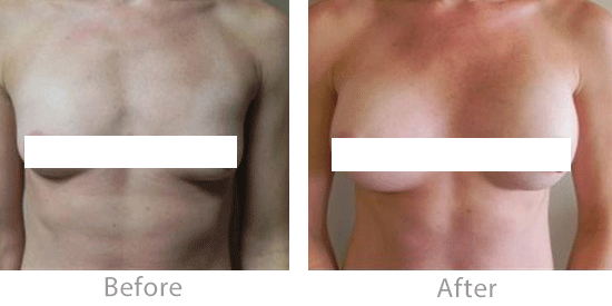 This woman has an athletic build and wanted breast implants that would give her a natural look. As with all my patients, I recommended that she gradually try bringing exercises back into her fitness regimen.